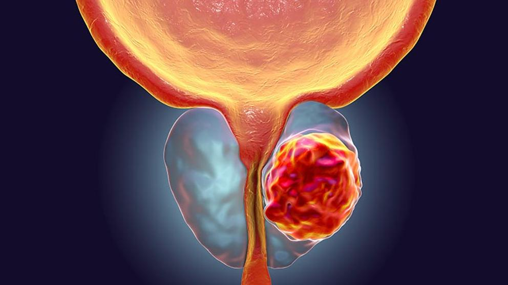 que es la cancer de prostata