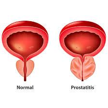 Prostatitis a Ureplasma- ban
